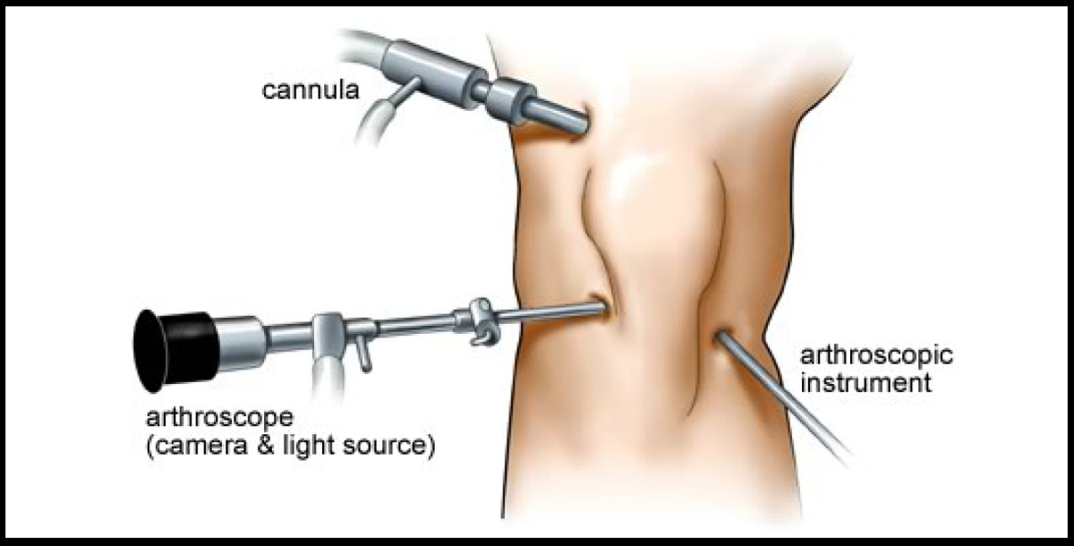 arthroscopic-surgery