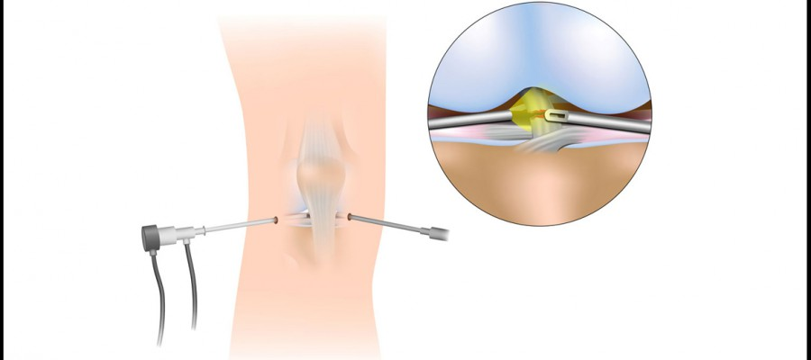 بازسازی رباطهای زانو (ACL و PCL)