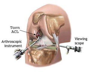 Reconstructing Knee