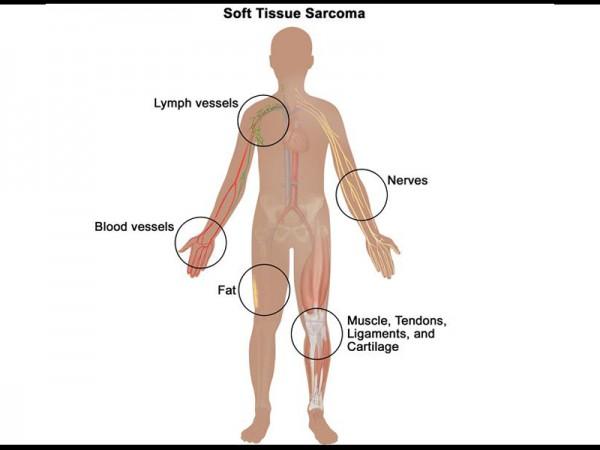 تومورهای نسج نرم