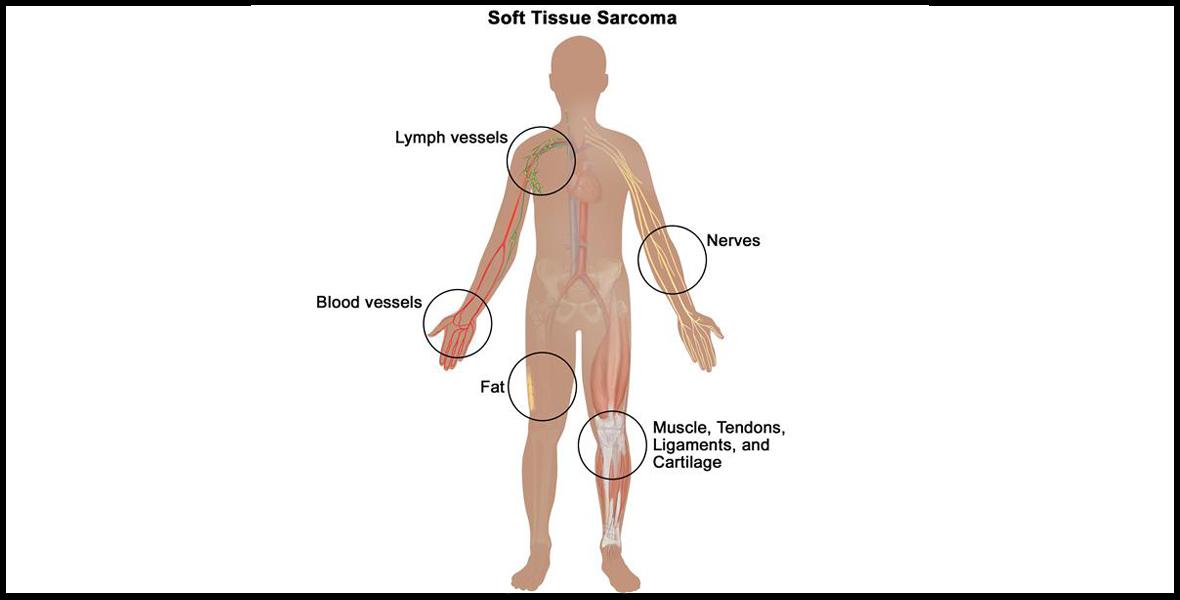 bone-tumor