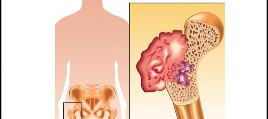 تومورهای استخوانی