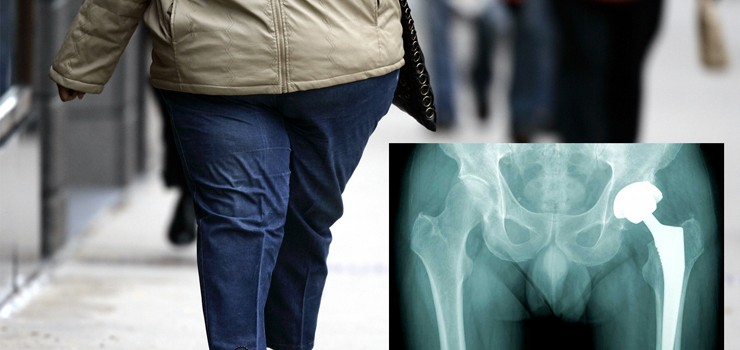 Total hip arthroplasty Vs. Obesity