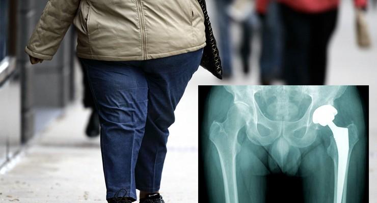 آیا برای عمل جراحی تعویض هیپ و زانو چاق هستم؟